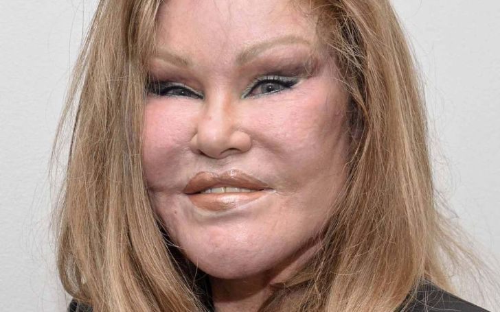 Who Is Jocelyn Wildenstein? Find Out More About Her Age, Wiki, Bio, Movies, Show, Surgery, And More