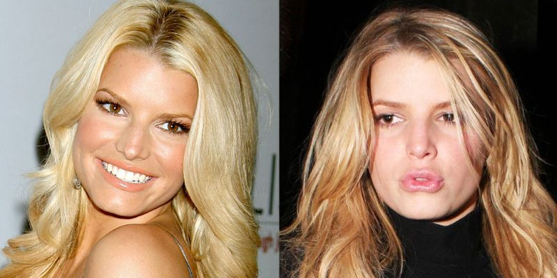 Jessica Simpson Criticized For Having Lips Done: Plastic Surgery, Trolls, And Reaction