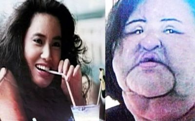 Korean Model Hang Mioku's Plastic Surgery Obsession Will Surprise You!!